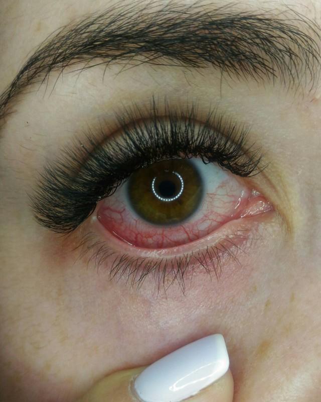 Что делать, если глаза покраснели, опухли и болят после наращивания ресниц?
